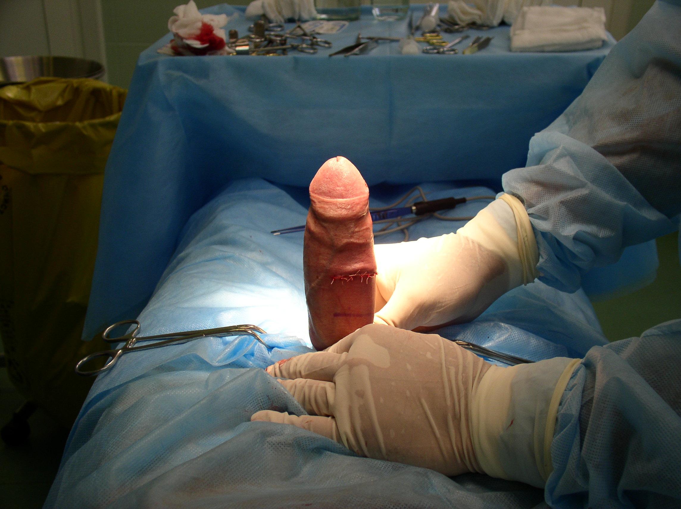 uvelichenie-chlena-hirurgicheskim-metodom